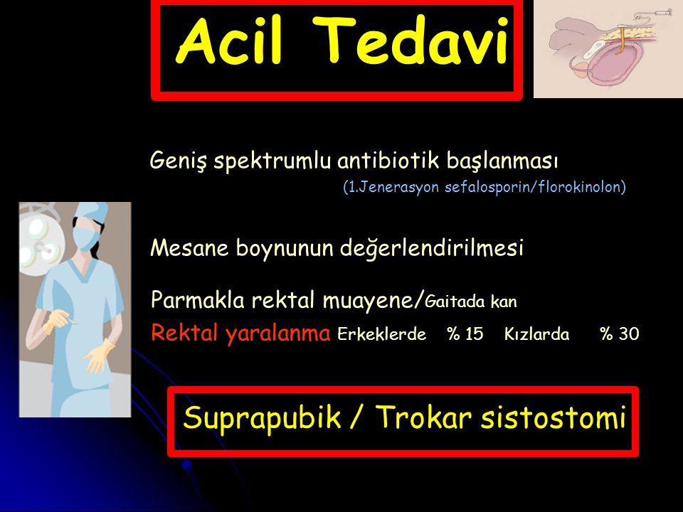 Acil Tedavi Suprapubik / Trokar sistostomi