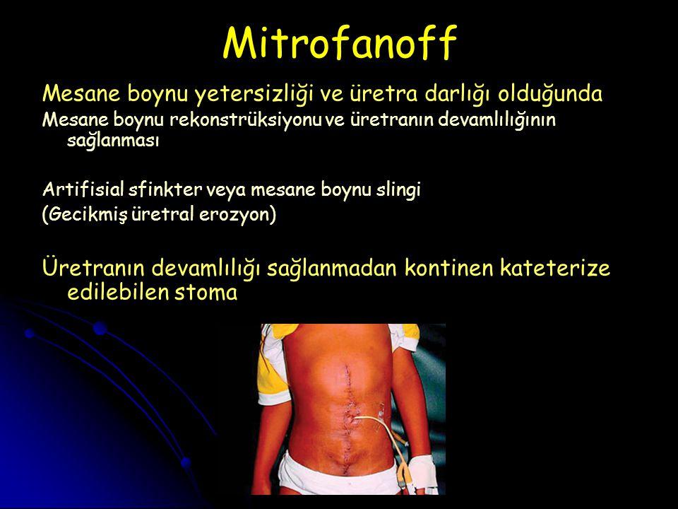Mitrofanoff Mesane boynu yetersizliği ve üretra darlığı olduğunda