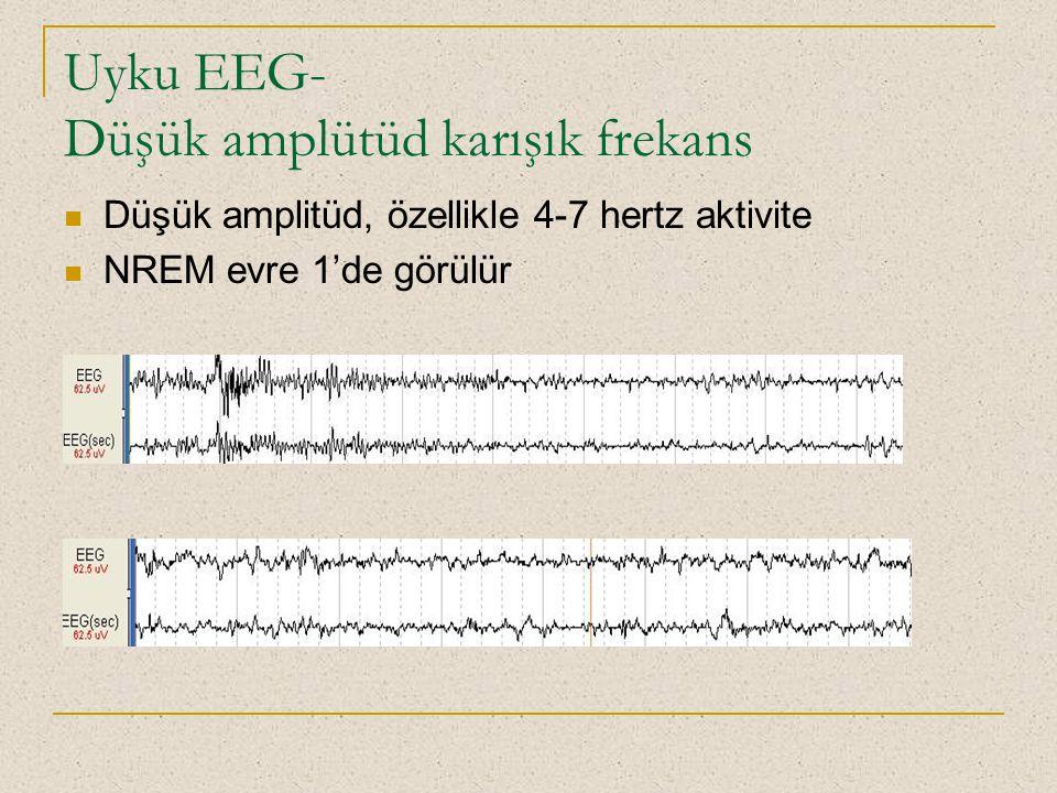 Uyku EEG- Düşük amplütüd karışık frekans