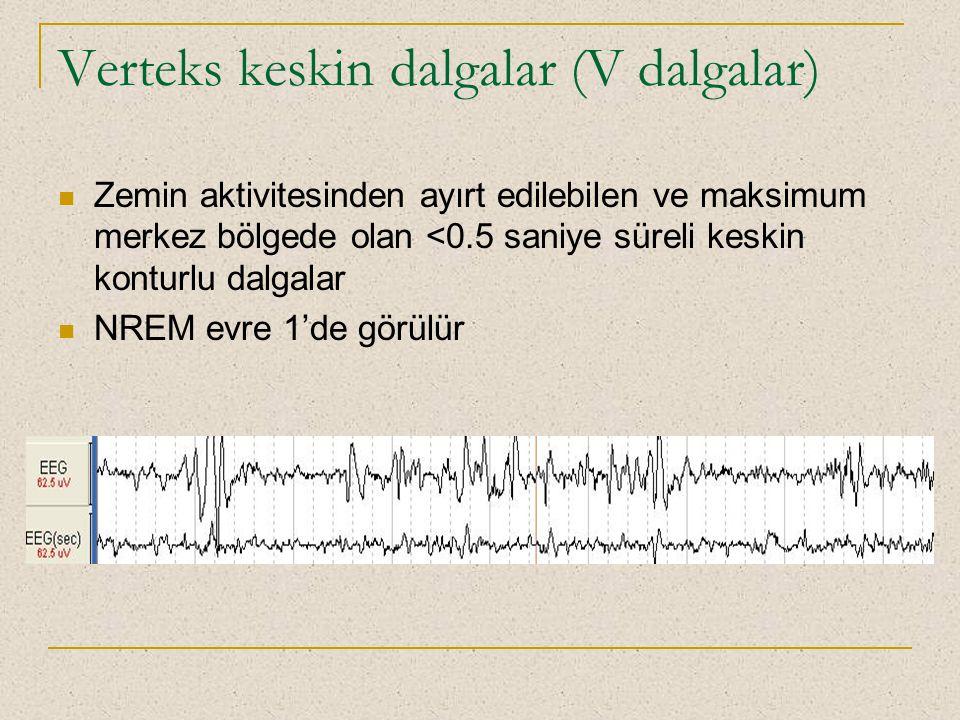Verteks keskin dalgalar (V dalgalar)