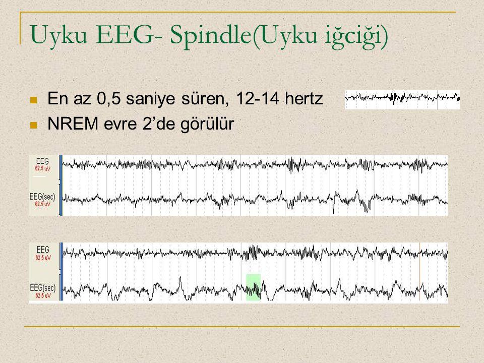 Uyku EEG- Spindle(Uyku iğciği)