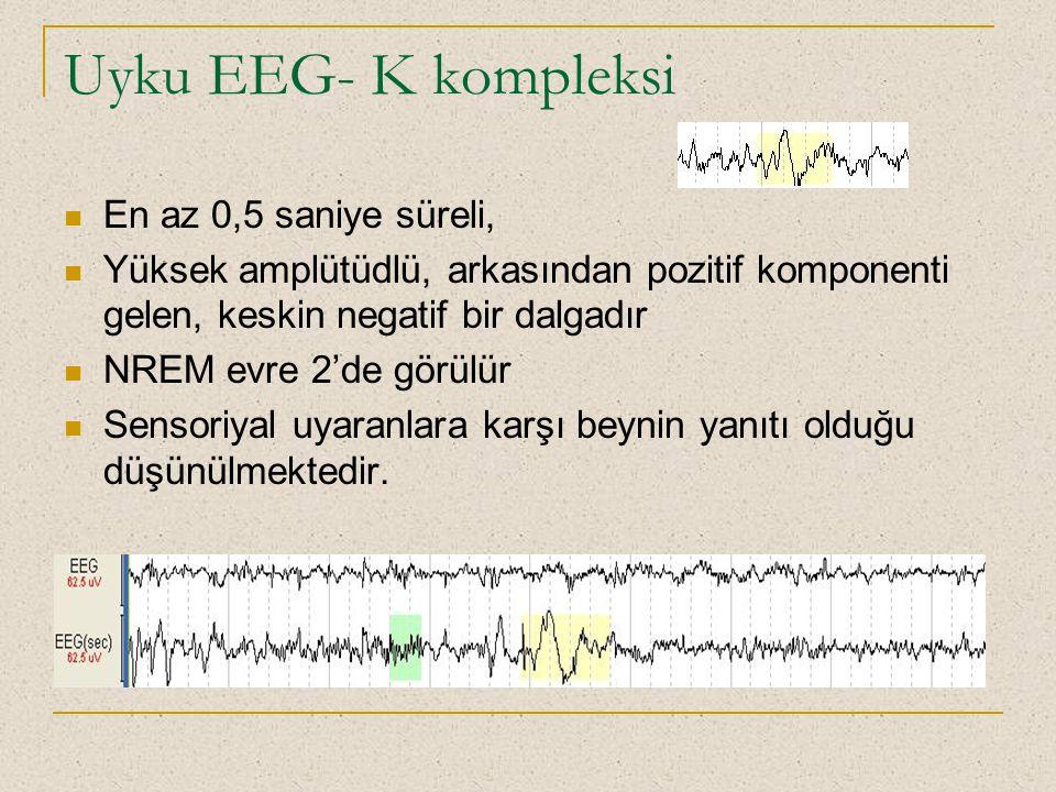 Uyku EEG- K kompleksi En az 0,5 saniye süreli,