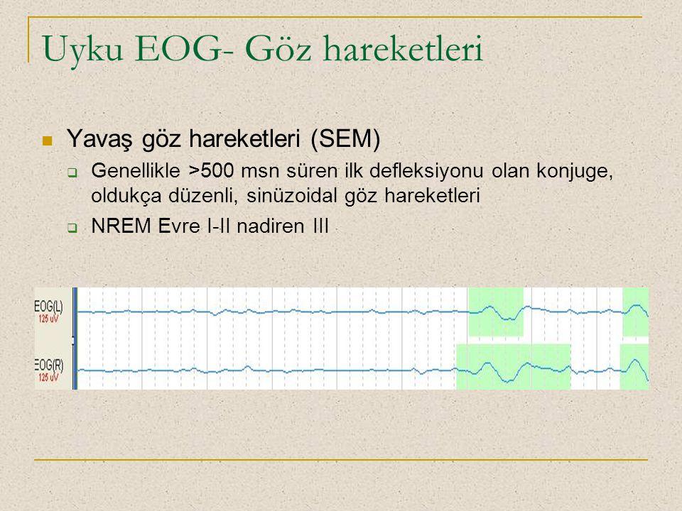 Uyku EOG- Göz hareketleri