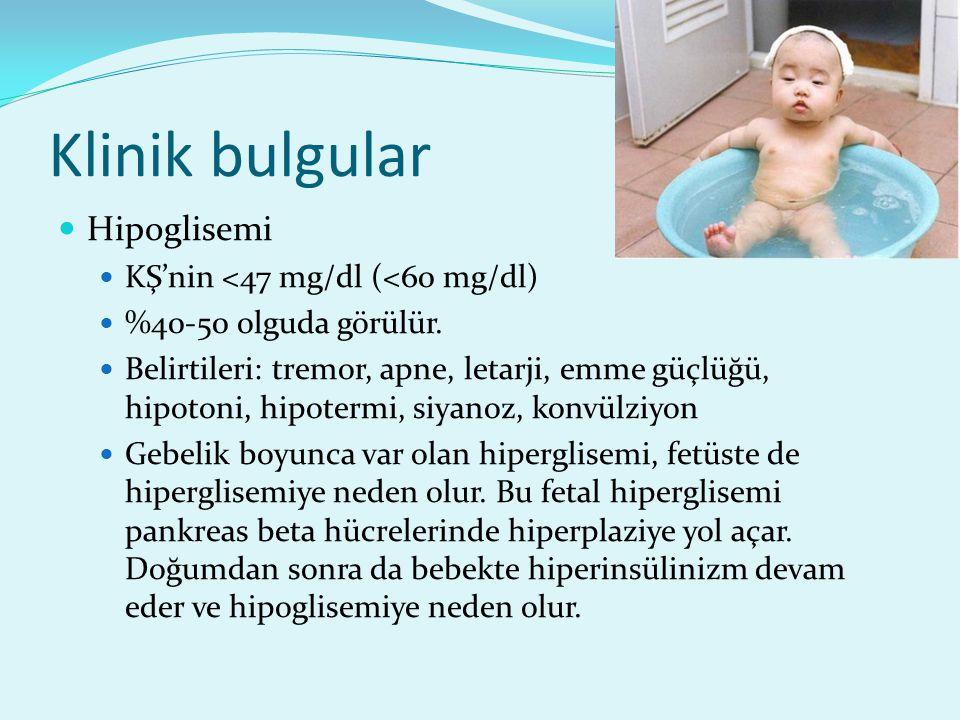 Klinik bulgular Hipoglisemi KŞ'nin <47 mg/dl (<60 mg/dl)