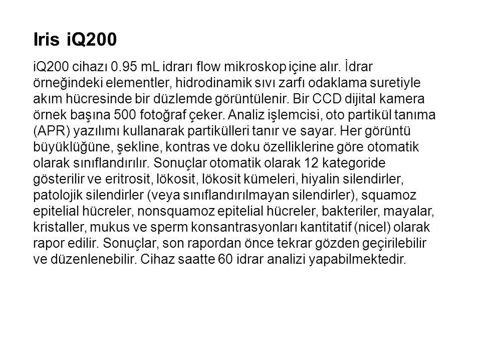 Iris iQ200