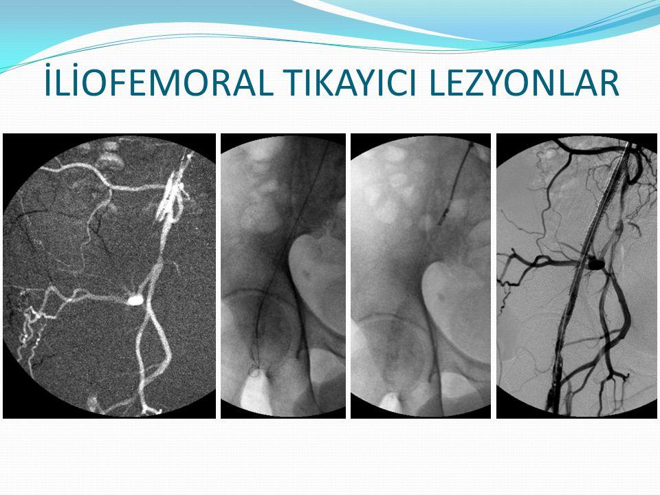 İLİOFEMORAL TIKAYICI LEZYONLAR