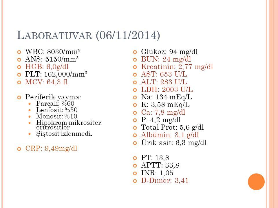 Laboratuvar (06/11/2014) WBC: 8030/mm³ ANS: 5150/mm³ HGB: 6,0g/dl
