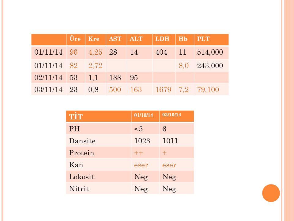 Üre Kre. AST. ALT. LDH. Hb. PLT. 01/11/14. 96. 4,25. 28. 14. 404. 11. 514,000. 82. 2,72.