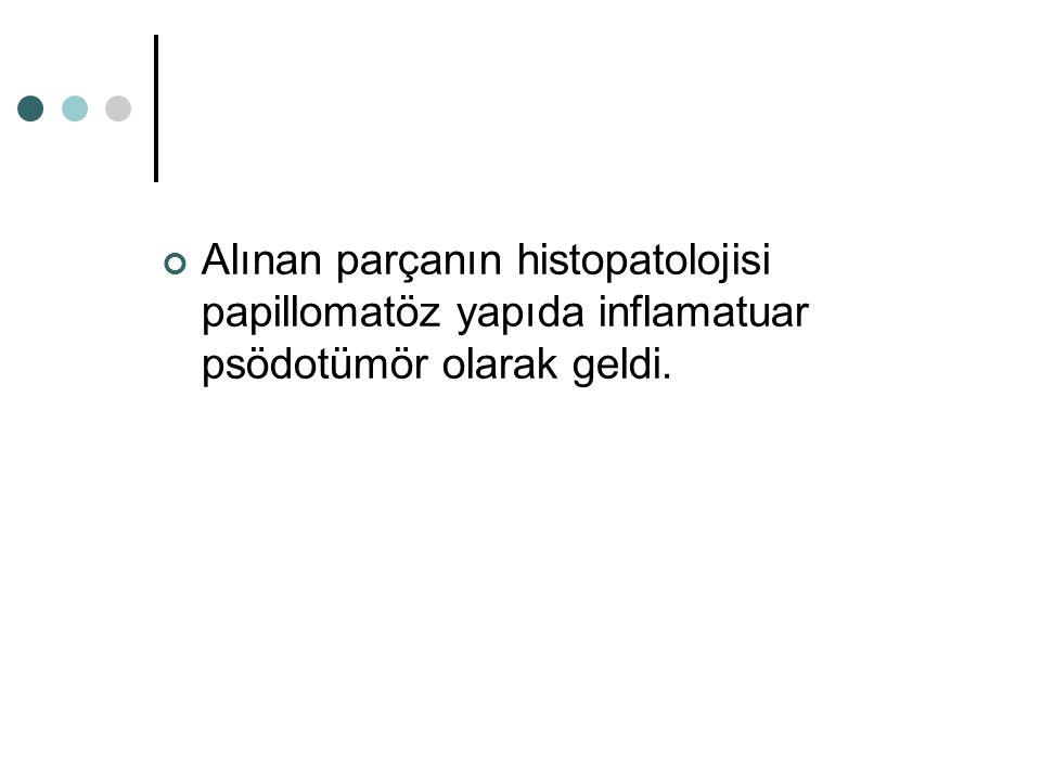 Alınan parçanın histopatolojisi papillomatöz yapıda inflamatuar psödotümör olarak geldi.