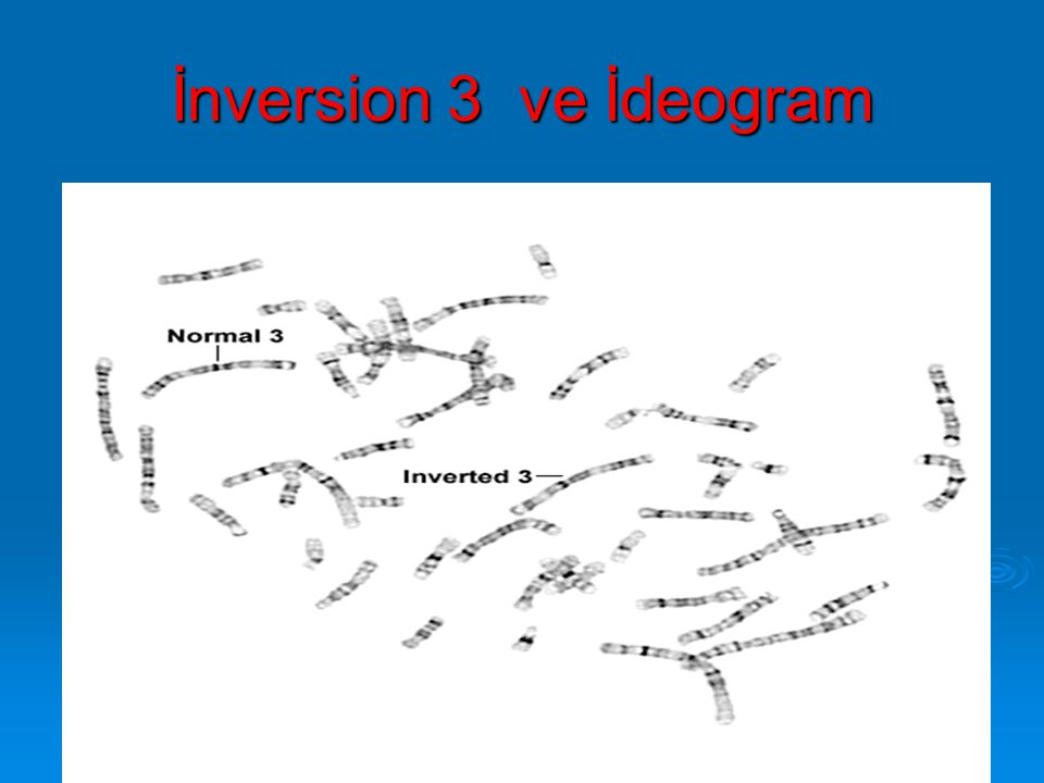 İnversion 3 ve İdeogram