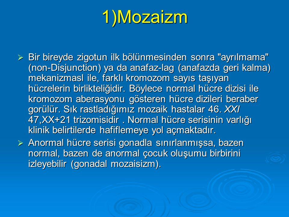 1)Mozaizm