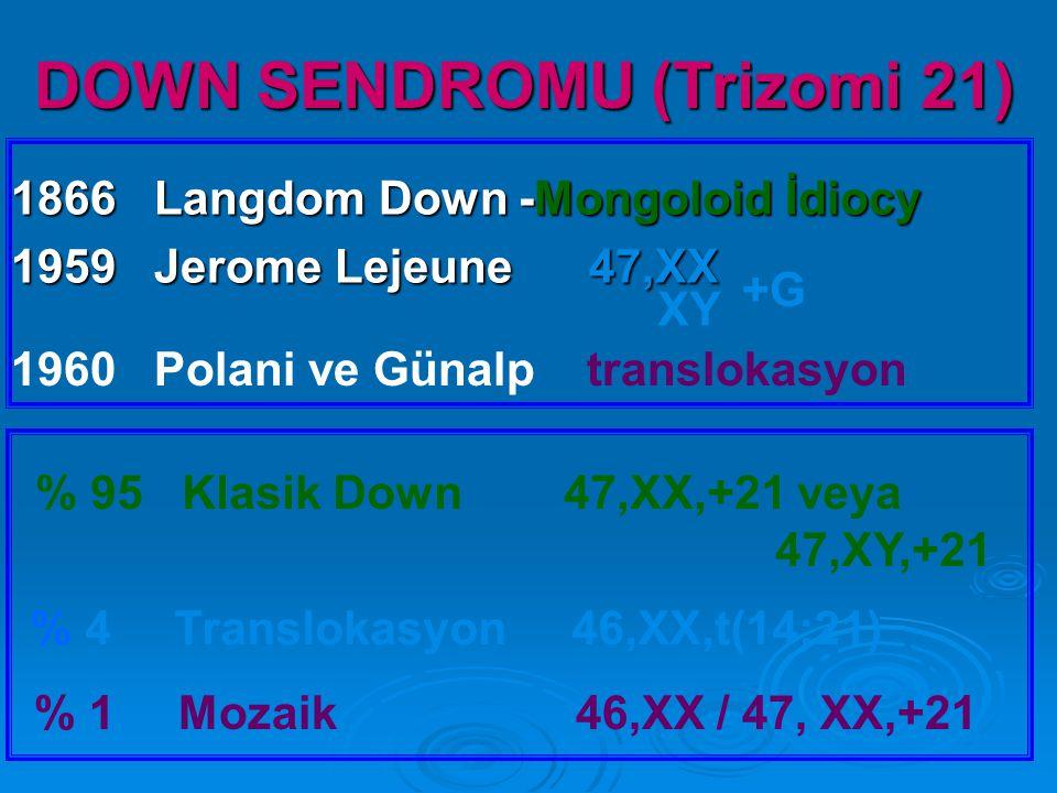 DOWN SENDROMU (Trizomi 21)