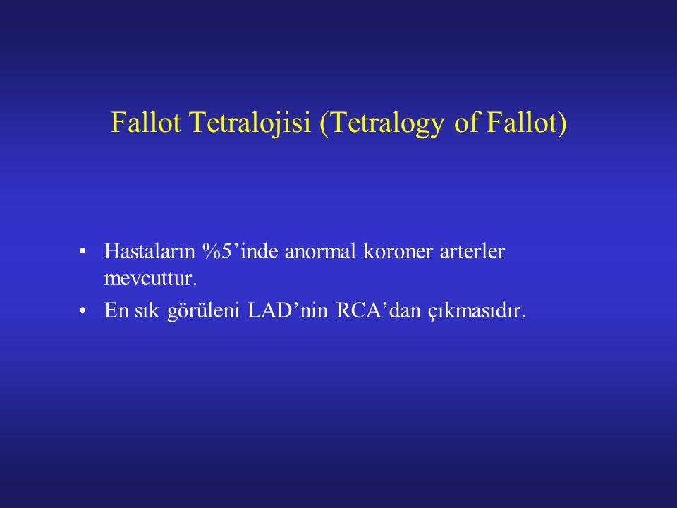 Fallot Tetralojisi (Tetralogy of Fallot)
