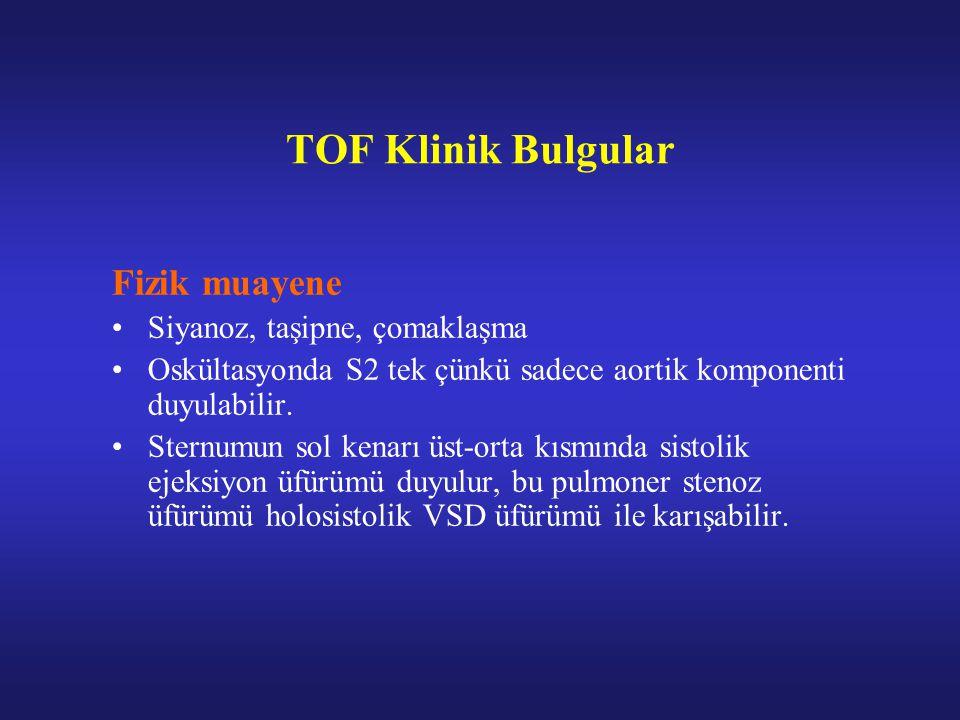 TOF Klinik Bulgular Fizik muayene Siyanoz, taşipne, çomaklaşma