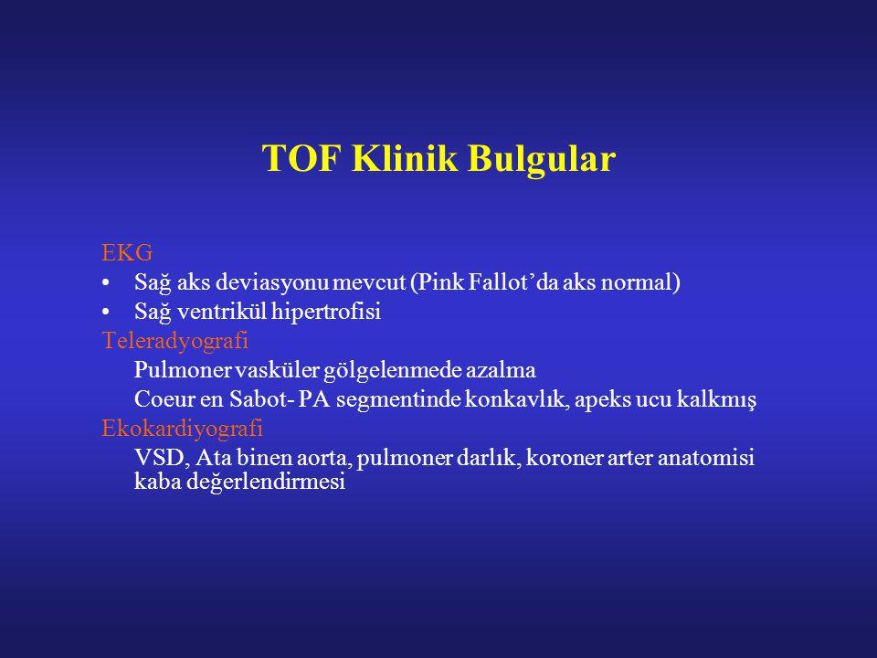 TOF Klinik Bulgular EKG