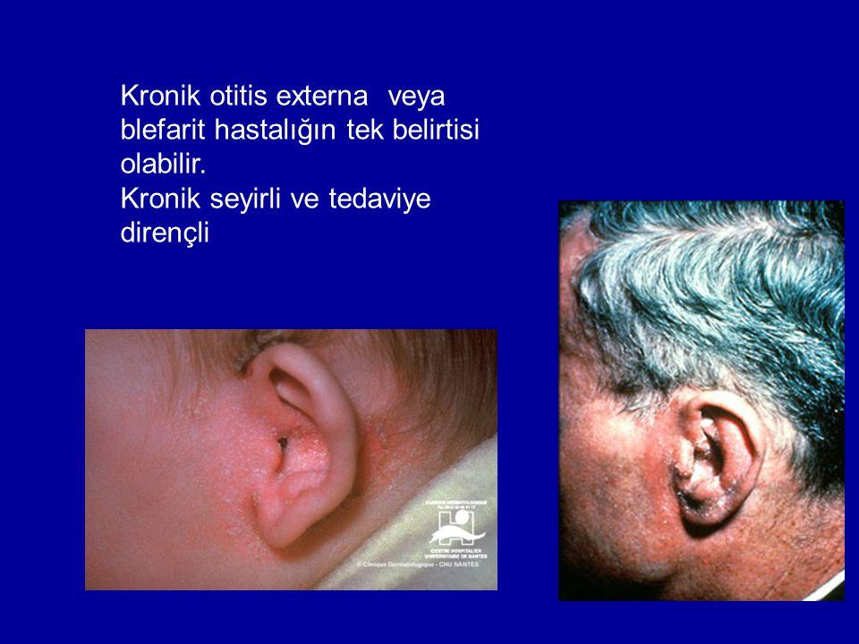 Kronik otitis externa veya blefarit hastalığın tek belirtisi olabilir.