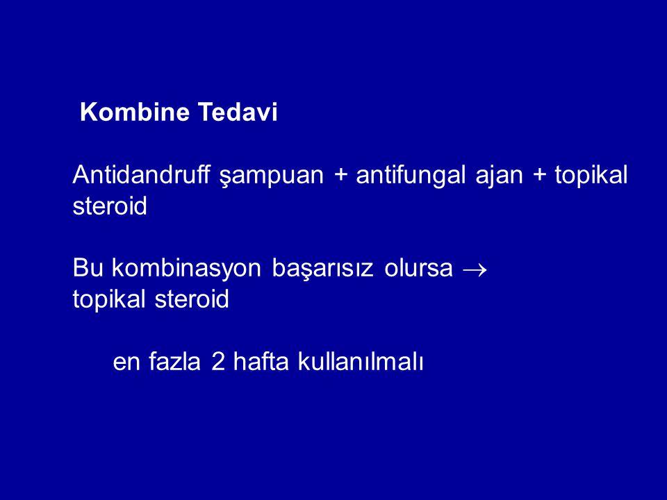 Antidandruff şampuan + antifungal ajan + topikal steroid