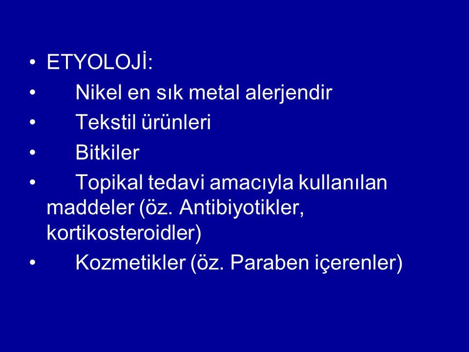 ETYOLOJİ: Nikel en sık metal alerjendir. Tekstil ürünleri. Bitkiler.