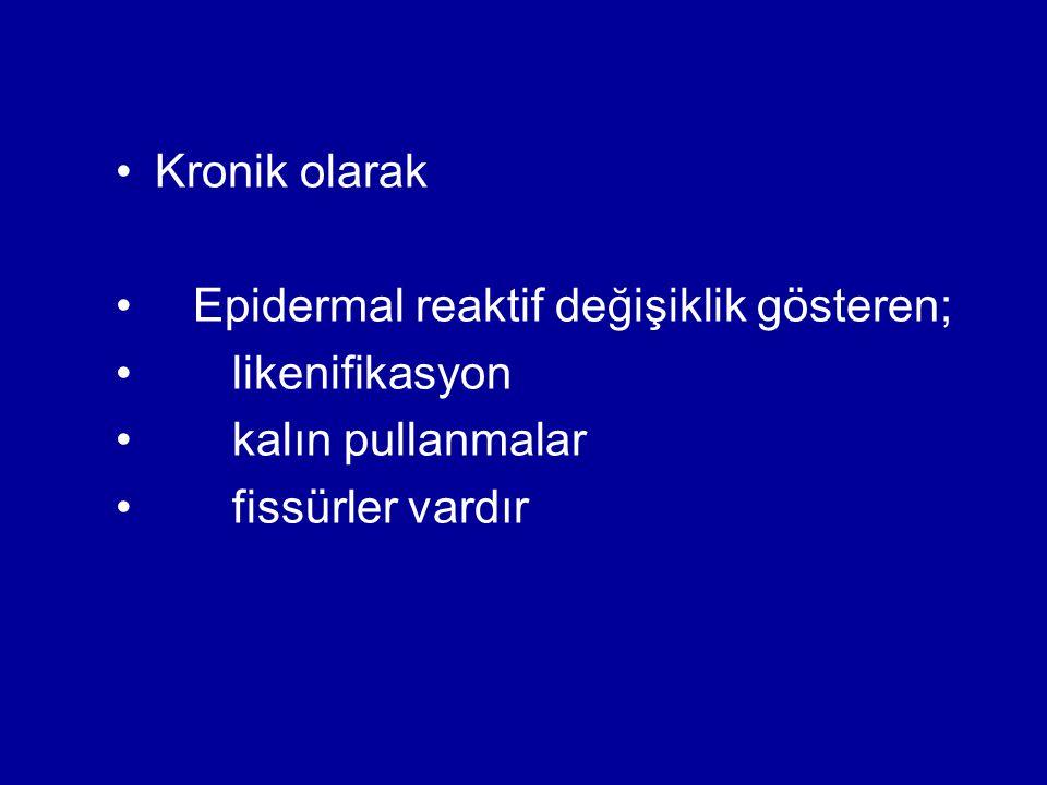 Kronik olarak Epidermal reaktif değişiklik gösteren; likenifikasyon.