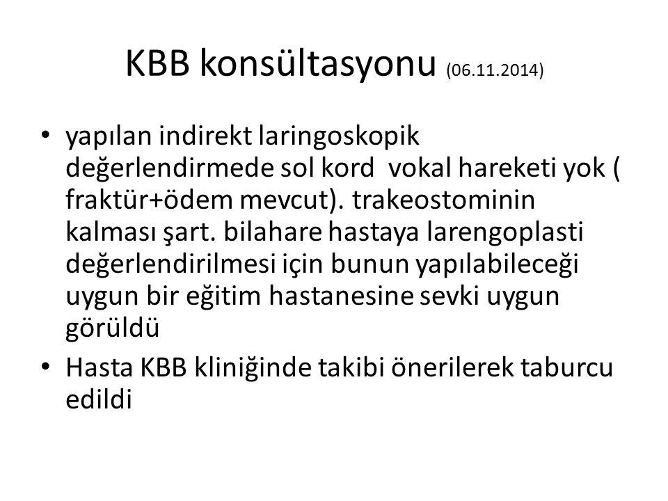 KBB konsültasyonu (06.11.2014)