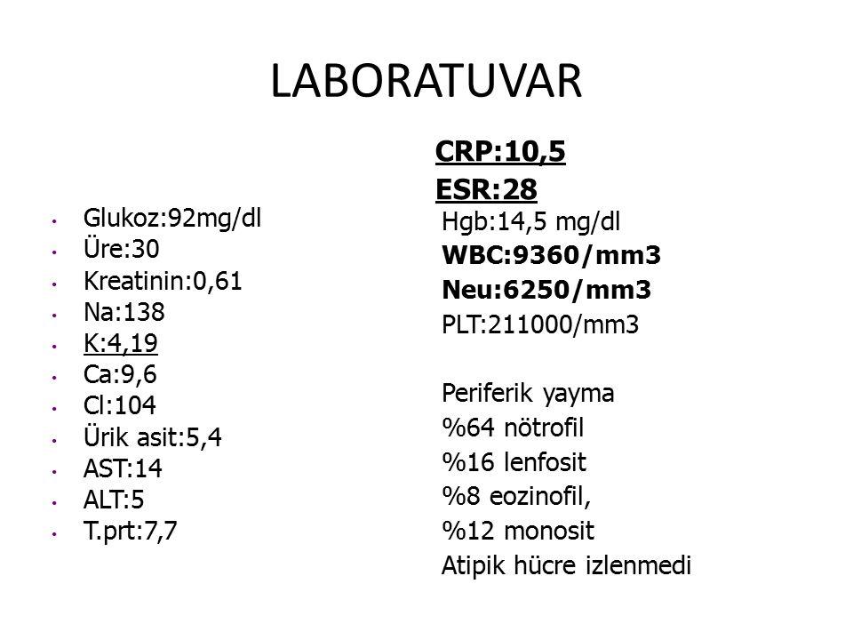 LABORATUVAR CRP:10,5 ESR:28 Glukoz:92mg/dl Üre:30 Kreatinin:0,61