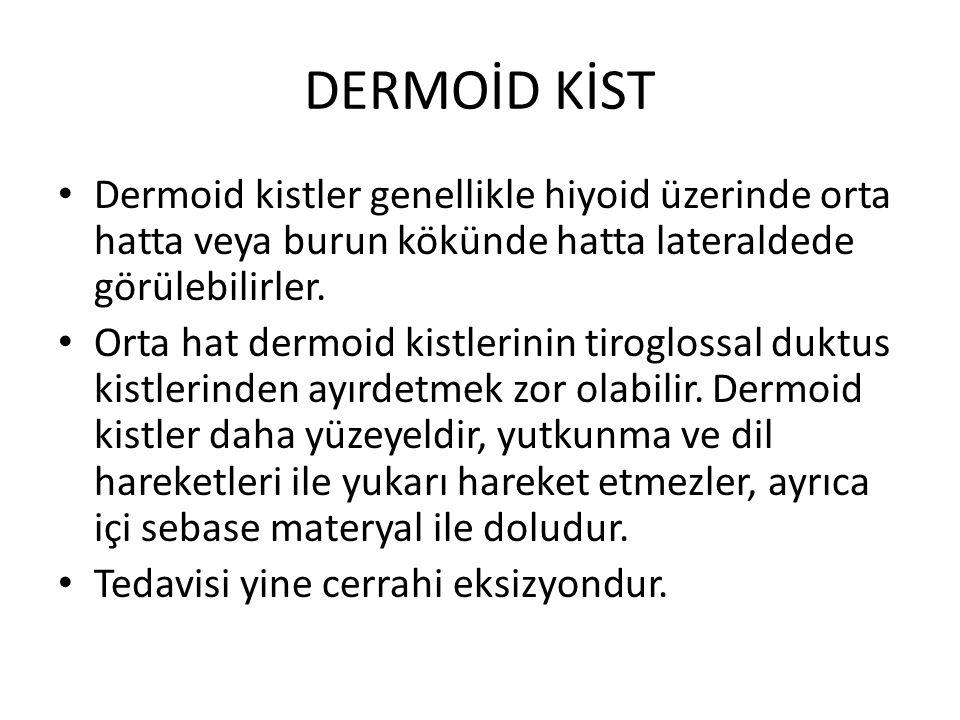 DERMOİD KİST Dermoid kistler genellikle hiyoid üzerinde orta hatta veya burun kökünde hatta lateraldede görülebilirler.