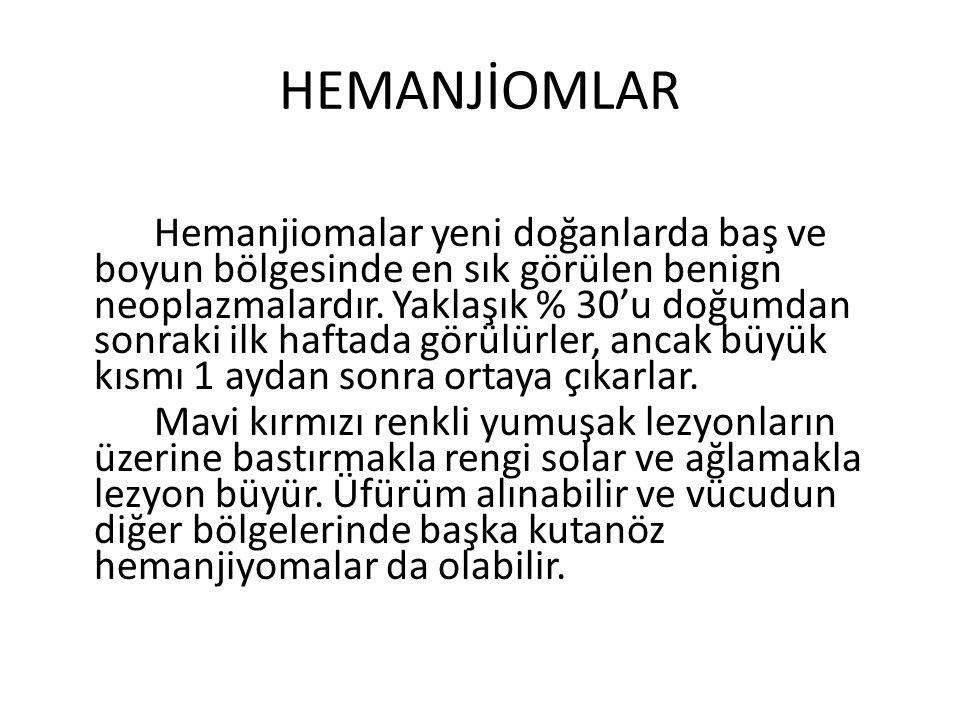 HEMANJİOMLAR