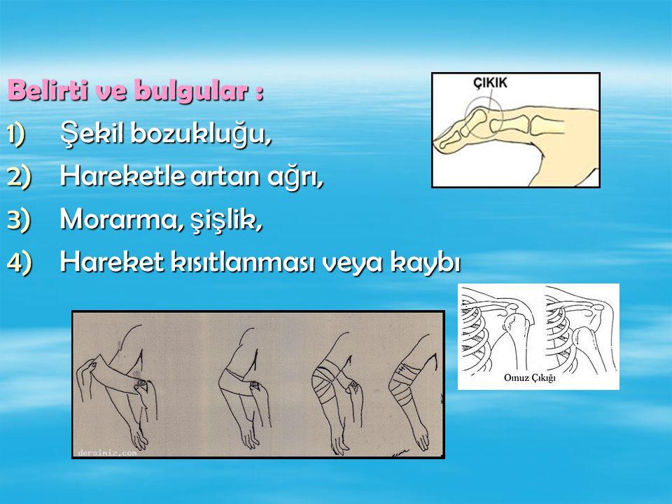 Belirti ve bulgular : Şekil bozukluğu, Hareketle artan ağrı, Morarma, şişlik, Hareket kısıtlanması veya kaybı.