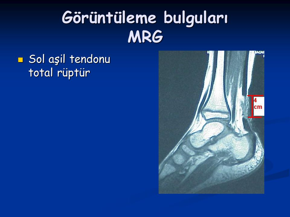 Görüntüleme bulguları MRG