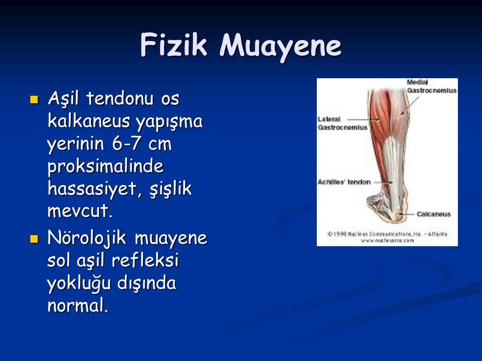 Fizik Muayene Aşil tendonu os kalkaneus yapışma yerinin 6-7 cm proksimalinde hassasiyet, şişlik mevcut.