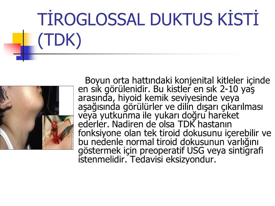 TİROGLOSSAL DUKTUS KİSTİ (TDK)