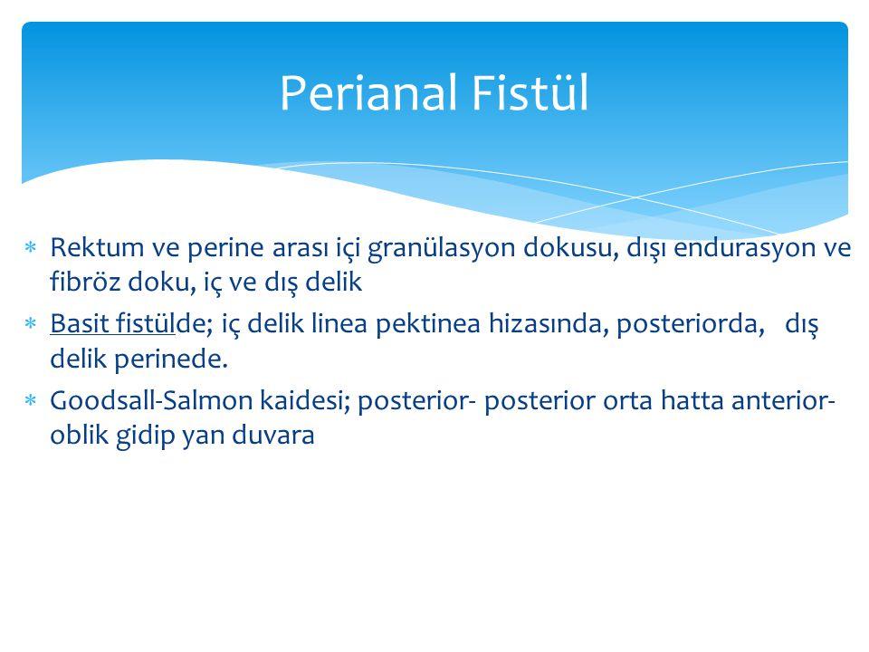 Perianal Fistül Rektum ve perine arası içi granülasyon dokusu, dışı endurasyon ve fibröz doku, iç ve dış delik.