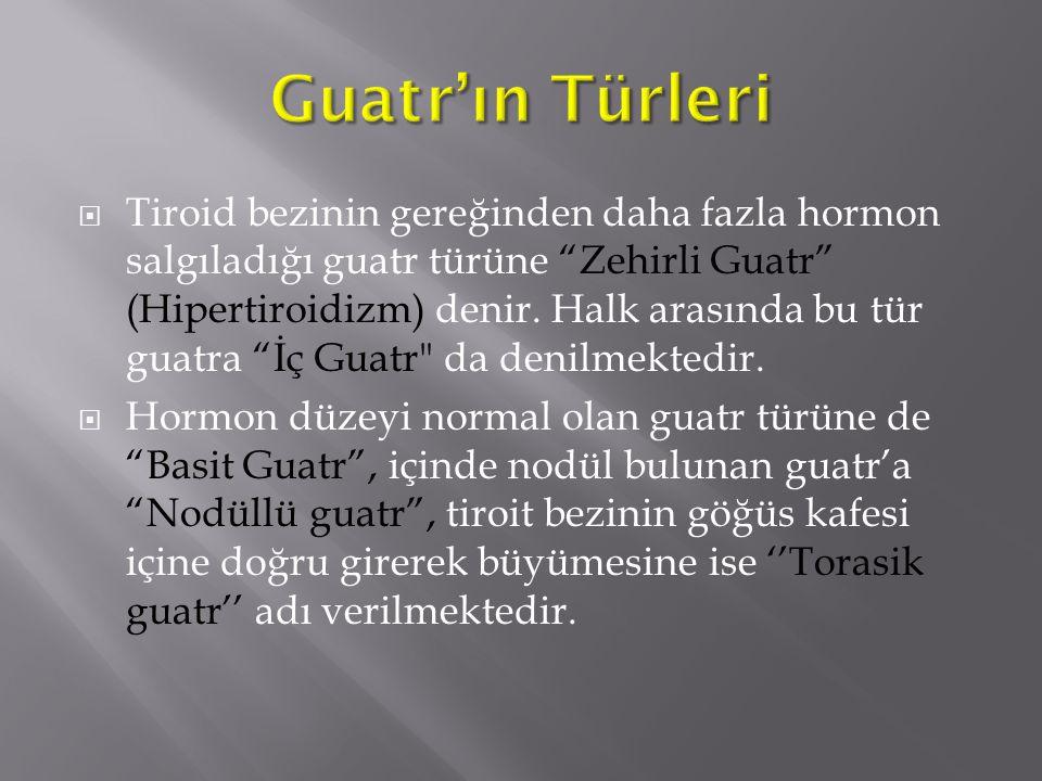 Guatr'ın Türleri