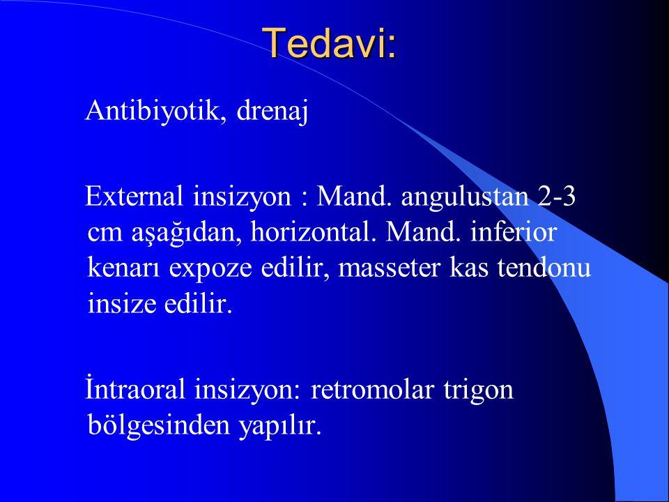 Tedavi: Antibiyotik, drenaj