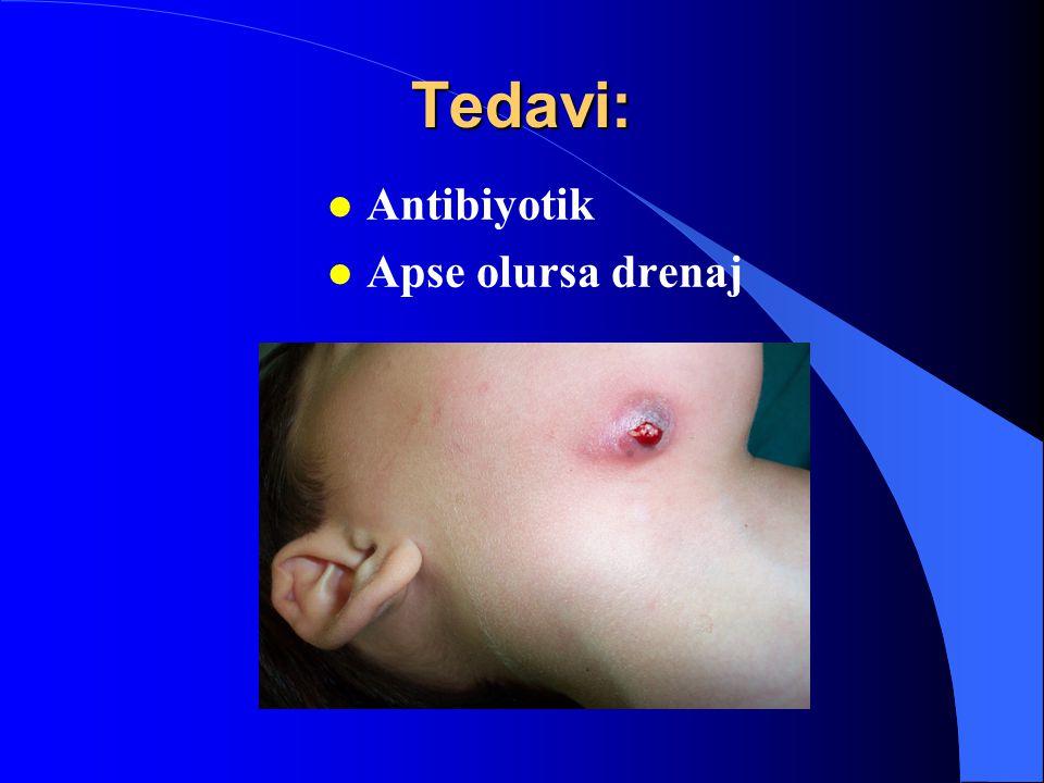 Tedavi: Antibiyotik Apse olursa drenaj