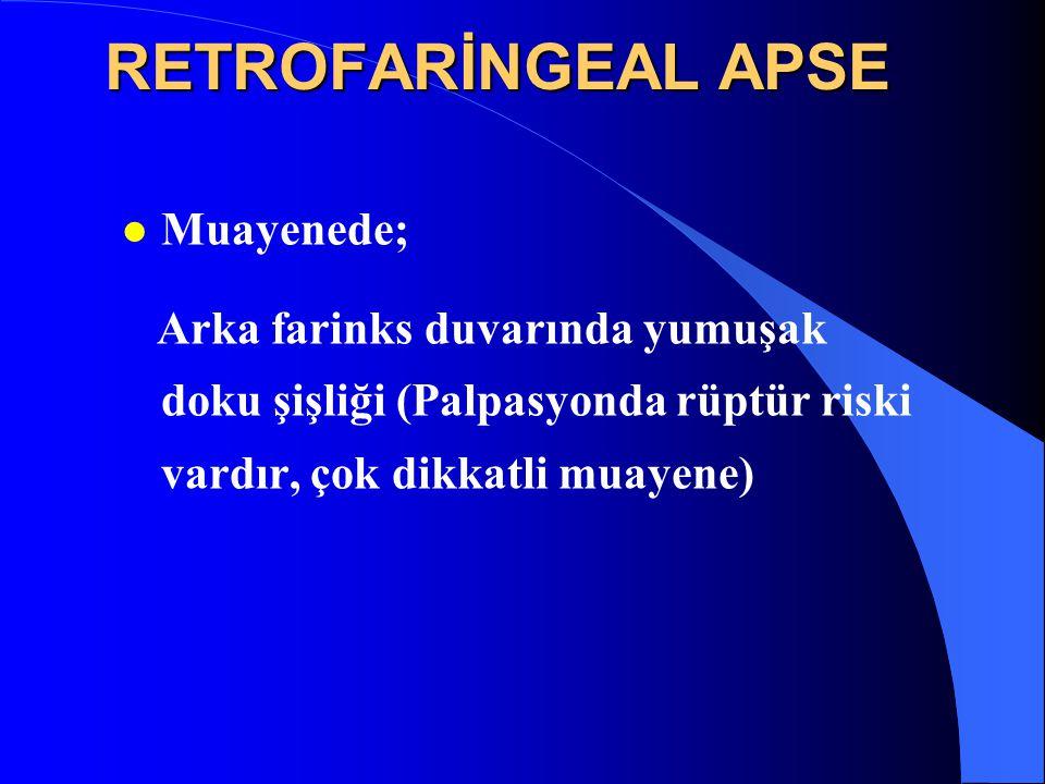 RETROFARİNGEAL APSE Muayenede;