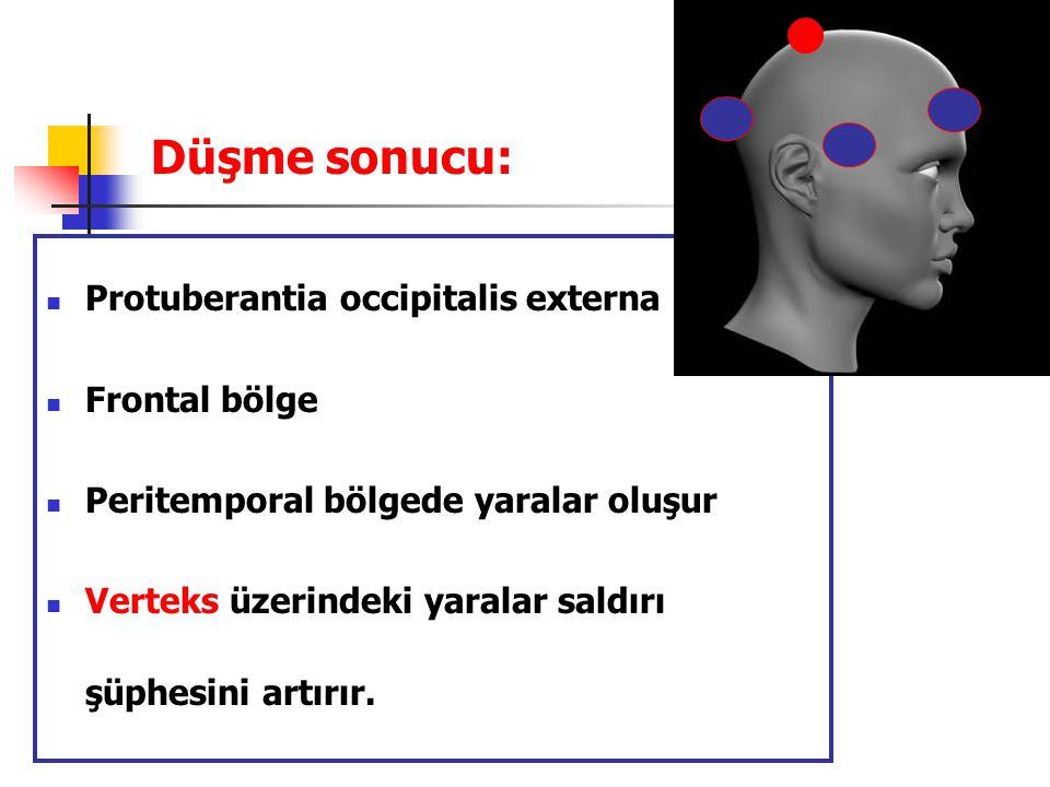 Düşme sonucu: Protuberantia occipitalis externa Frontal bölge
