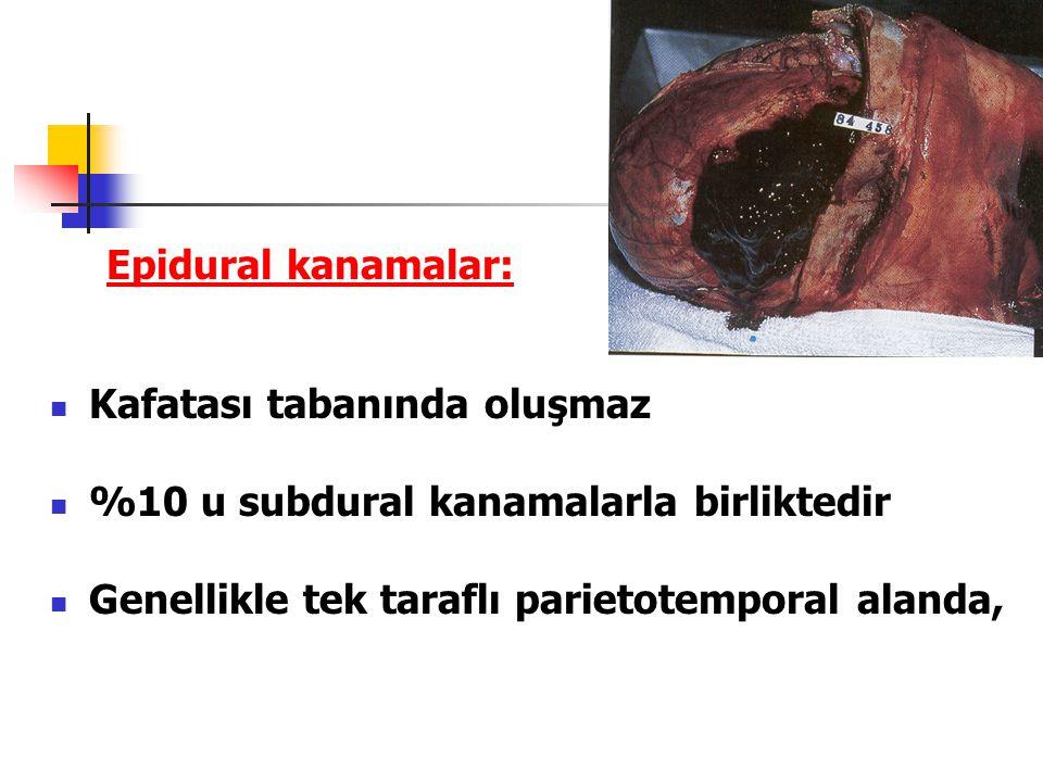 Epidural kanamalar: Kafatası tabanında oluşmaz. %10 u subdural kanamalarla birliktedir.