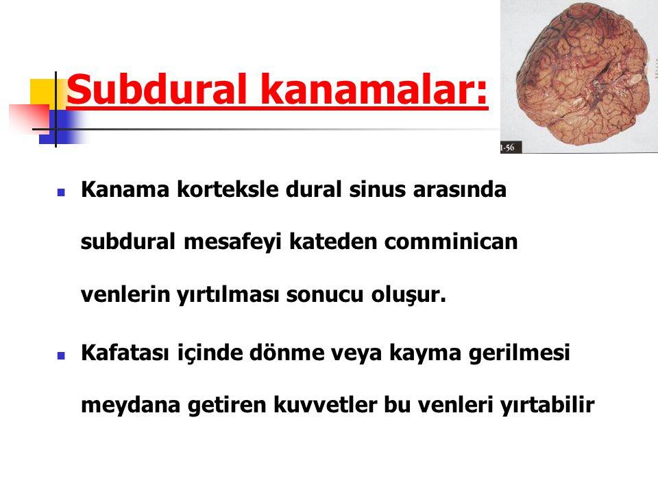 Subdural kanamalar: Kanama korteksle dural sinus arasında subdural mesafeyi kateden comminican venlerin yırtılması sonucu oluşur.