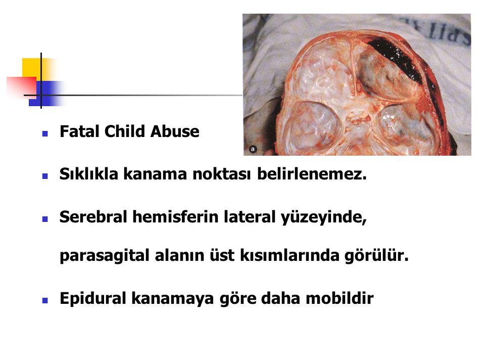 Fatal Child Abuse Sıklıkla kanama noktası belirlenemez. Serebral hemisferin lateral yüzeyinde, parasagital alanın üst kısımlarında görülür.