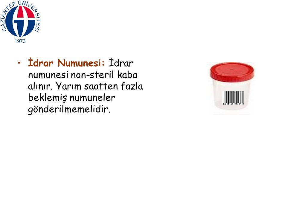 İdrar Numunesi: İdrar numunesi non-steril kaba alınır