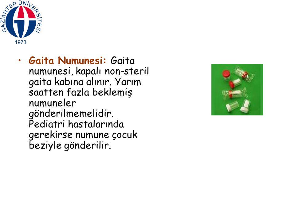 Gaita Numunesi: Gaita numunesi, kapalı non-steril gaita kabına alınır
