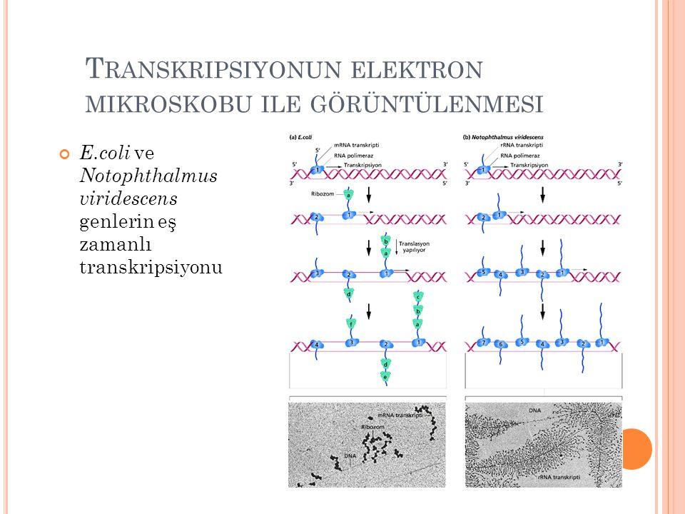 Transkripsiyonun elektron mikroskobu ile görüntülenmesi
