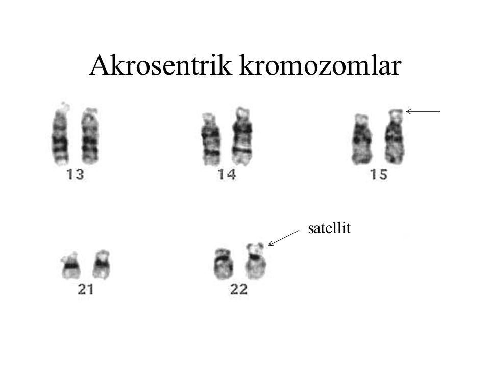 Akrosentrik kromozomlar