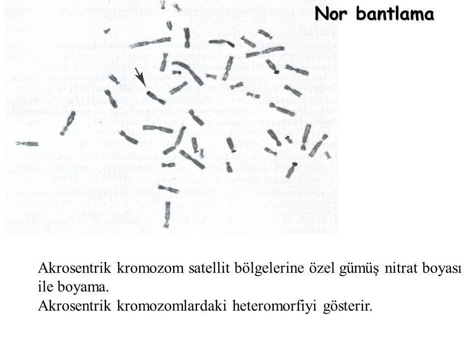 Nor bantlama Akrosentrik kromozom satellit bölgelerine özel gümüş nitrat boyası.