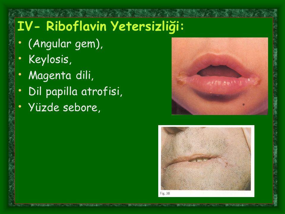 IV- Riboflavin Yetersizliği: