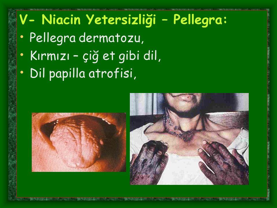 V- Niacin Yetersizliği – Pellegra: