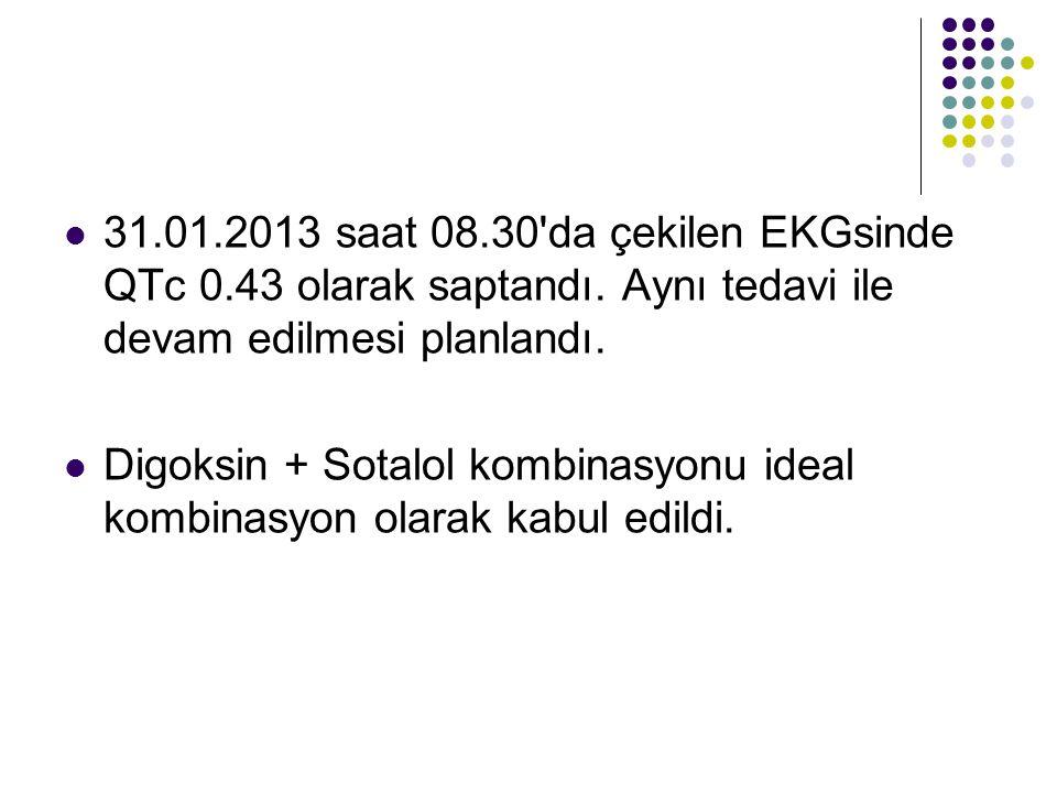 31. 01. 2013 saat 08. 30 da çekilen EKGsinde QTc 0. 43 olarak saptandı