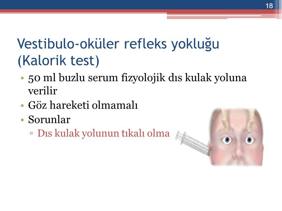 Vestibulo-oküler refleks yokluğu (Kalorik test)