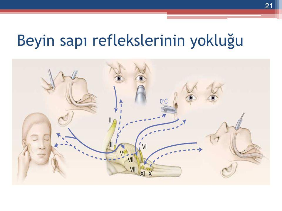 Beyin sapı reflekslerinin yokluğu